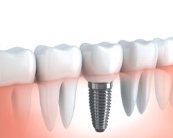 Dental Implants 2 Midlothian, VA Dentist | Biggers Family Dentistry