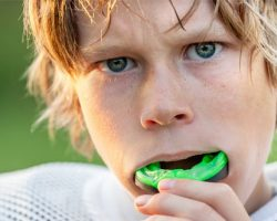 Mouthguards 1 Midlothian, VA Dentist | Biggers Family Dentistry