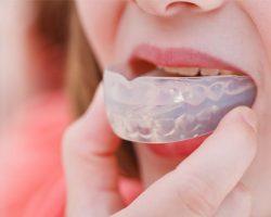 Mouthguards 2 Midlothian, VA Dentist | Biggers Family Dentistry